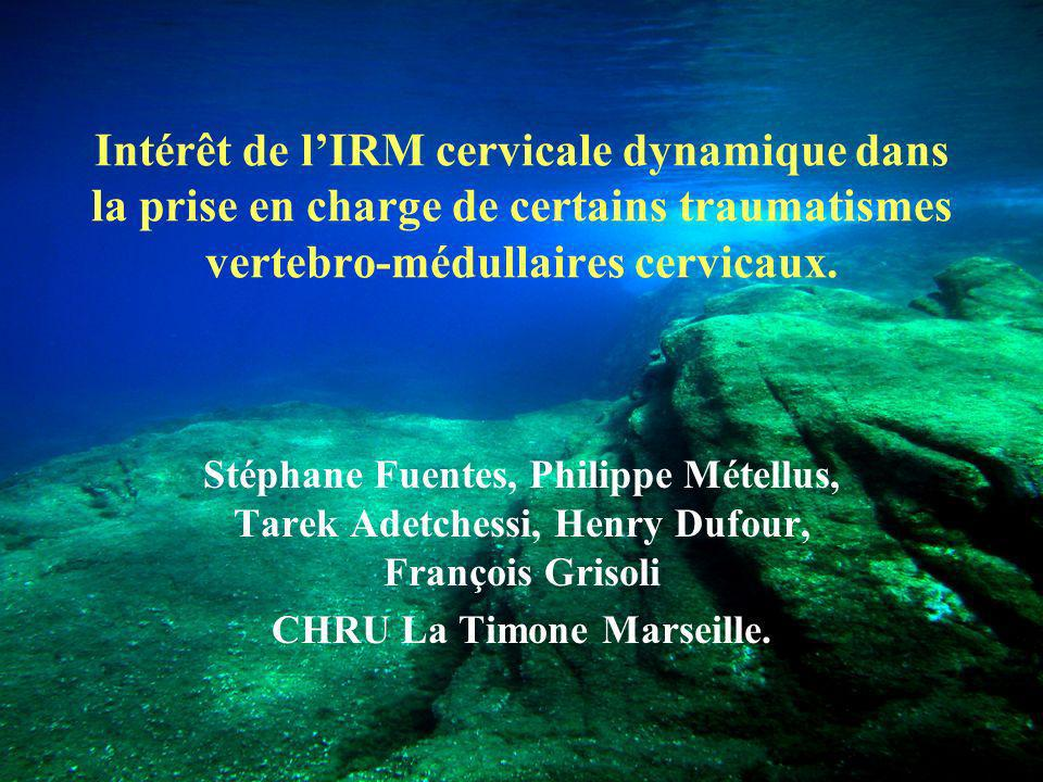 CHRU La Timone Marseille.