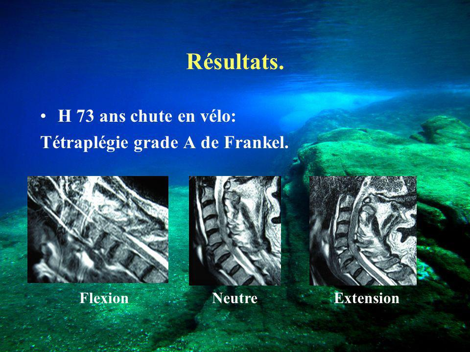 Résultats. H 73 ans chute en vélo: Tétraplégie grade A de Frankel.