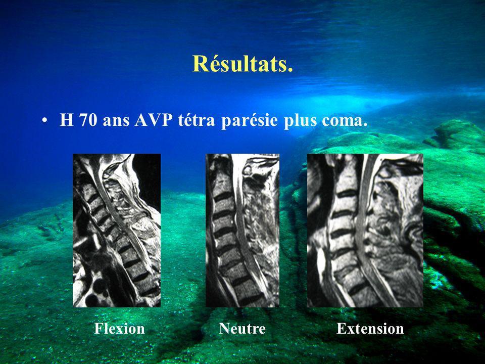 Résultats. H 70 ans AVP tétra parésie plus coma. Flexion Neutre