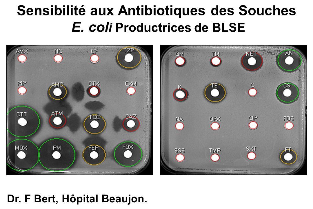 Sensibilité aux Antibiotiques des Souches E. coli Productrices de BLSE