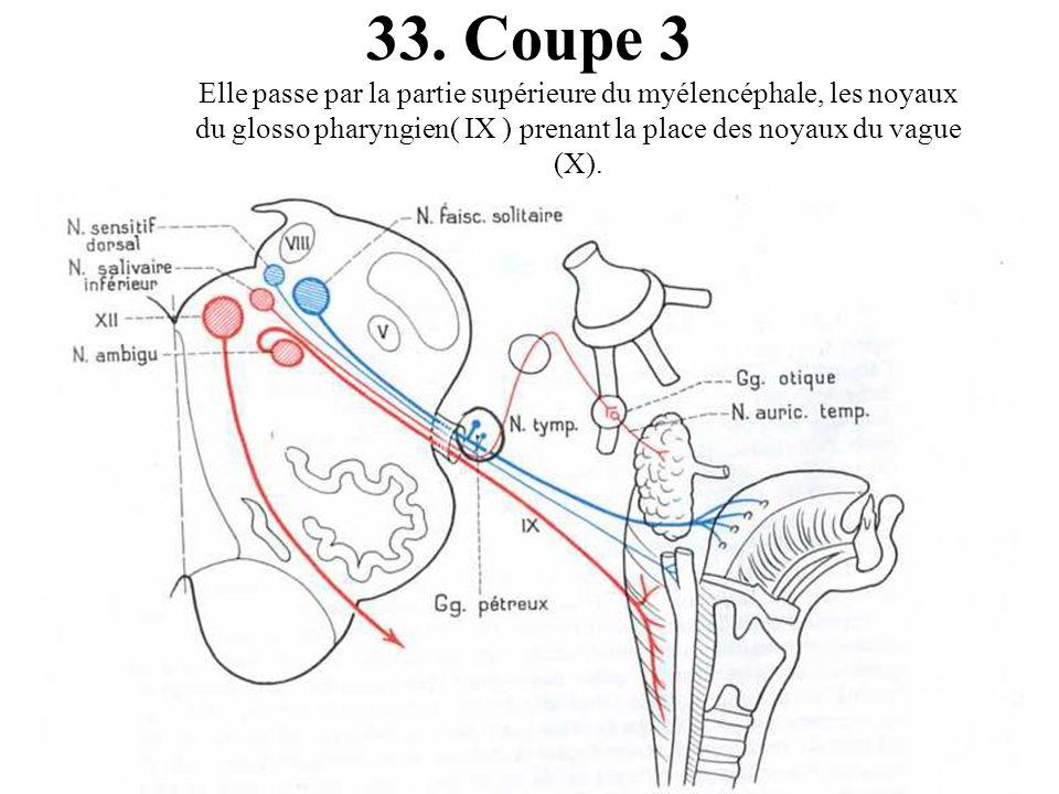 Coupe 3 Elle passe par la partie supérieure du myélencéphale, les noyaux du glosso pharyngien( IX ) prenant la place des noyaux du vague (X).