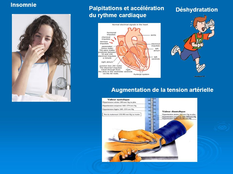 Insomnie Palpitations et accélération. du rythme cardiaque.