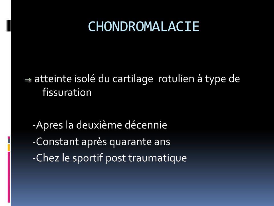 CHONDROMALACIE atteinte isolé du cartilage rotulien à type de fissuration. -Apres la deuxième décennie.