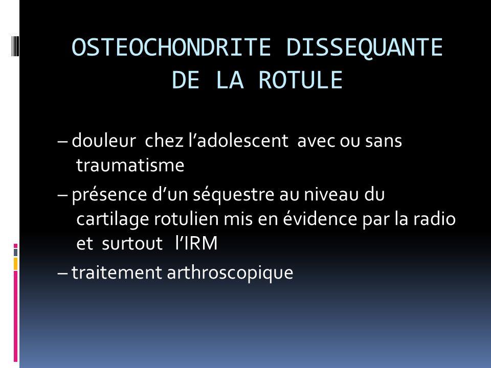 OSTEOCHONDRITE DISSEQUANTE DE LA ROTULE