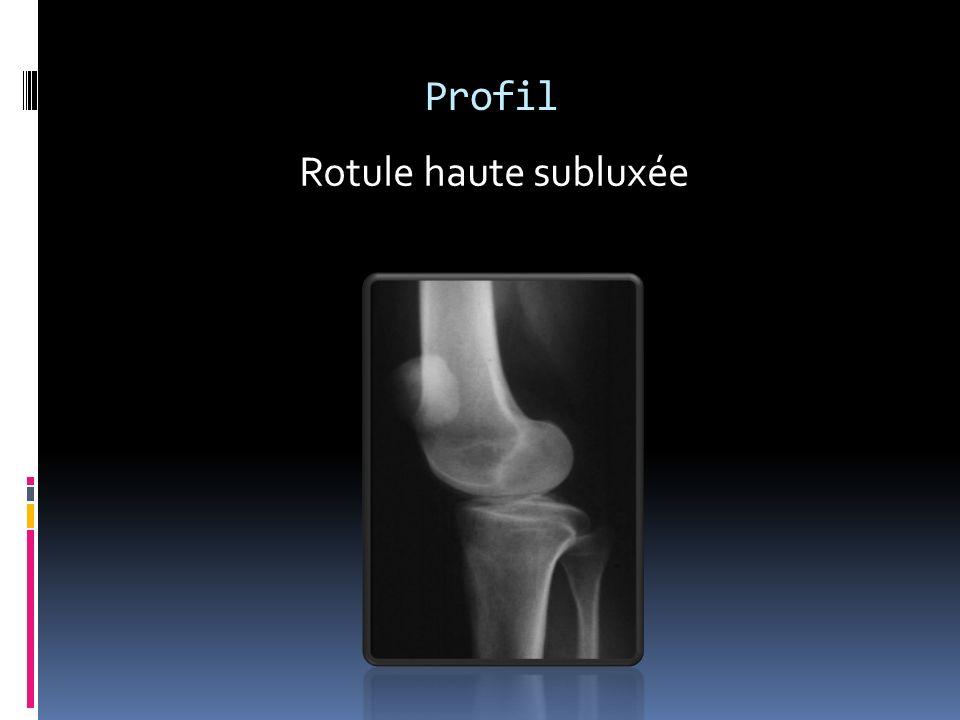 Profil Rotule haute subluxée