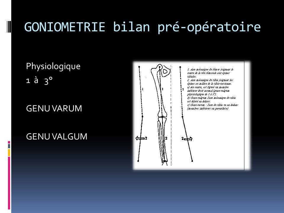 GONIOMETRIE bilan pré-opératoire
