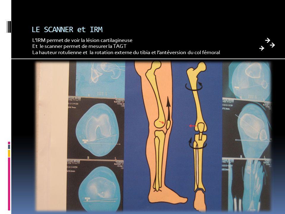 LE SCANNER et IRM L'IRM permet de voir la lésion cartilagineuse