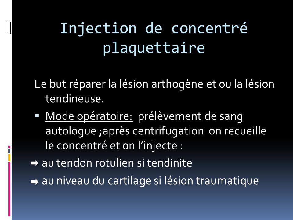 Injection de concentré plaquettaire