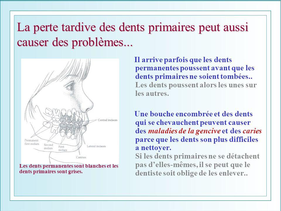 La perte tardive des dents primaires peut aussi causer des problèmes...