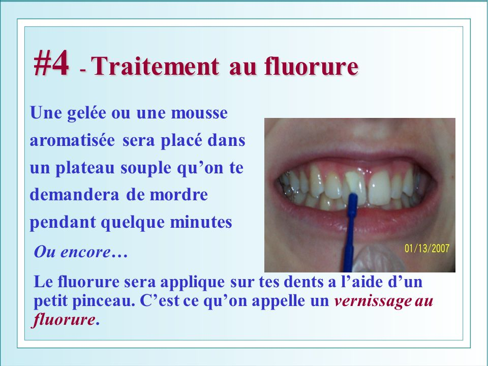 #4 - Traitement au fluorure