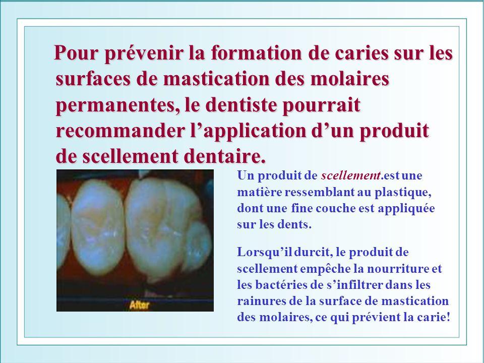 Pour prévenir la formation de caries sur les surfaces de mastication des molaires permanentes, le dentiste pourrait recommander l'application d'un produit de scellement dentaire.