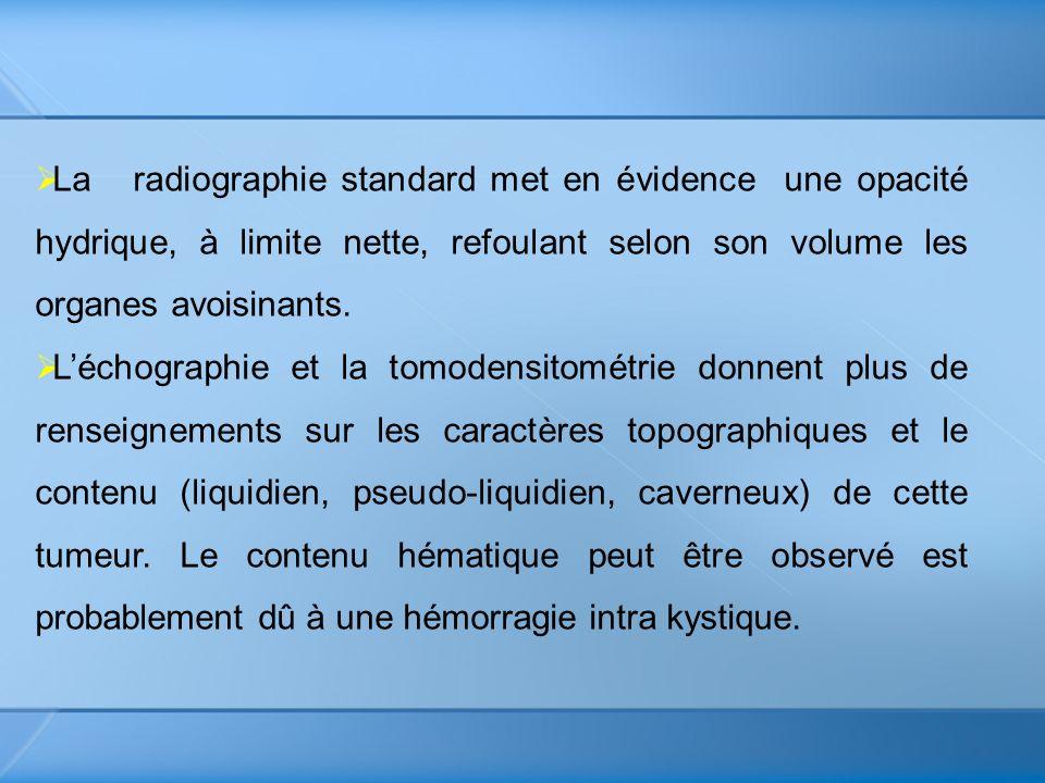 La radiographie standard met en évidence une opacité hydrique, à limite nette, refoulant selon son volume les organes avoisinants.