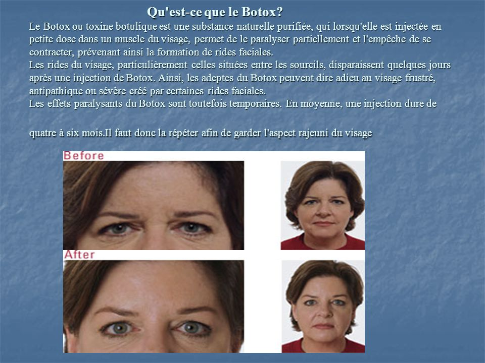 Qu est-ce que le Botox.