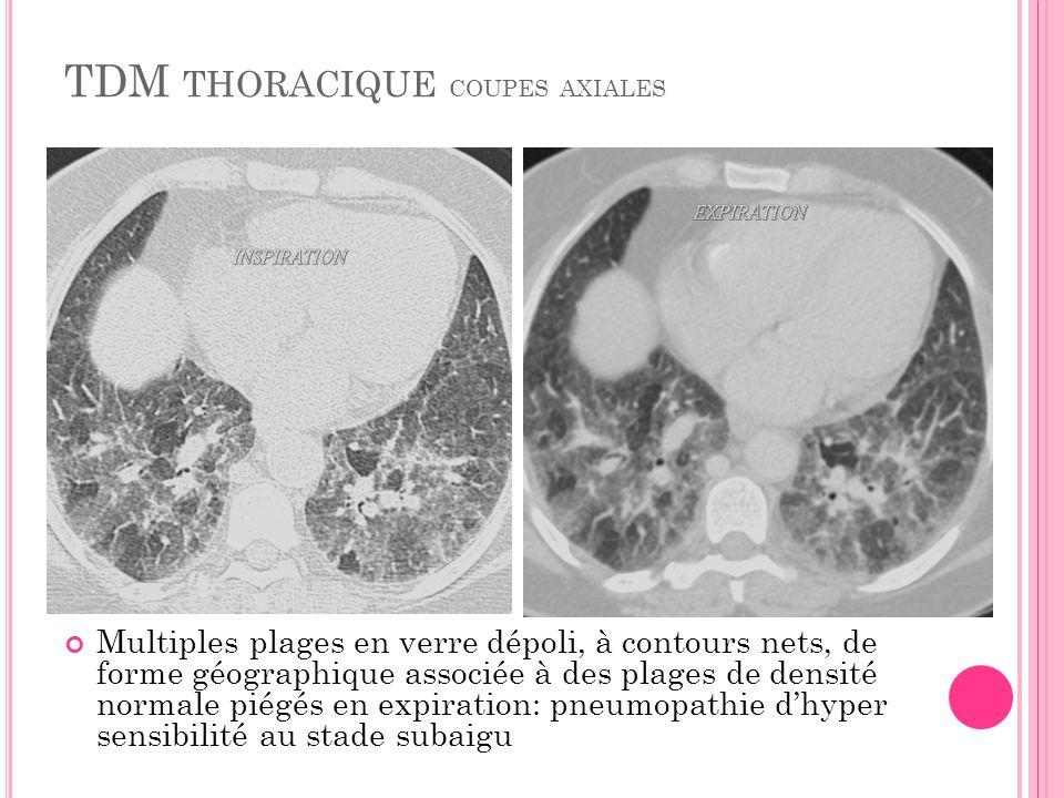 TDM thoracique coupes axiales