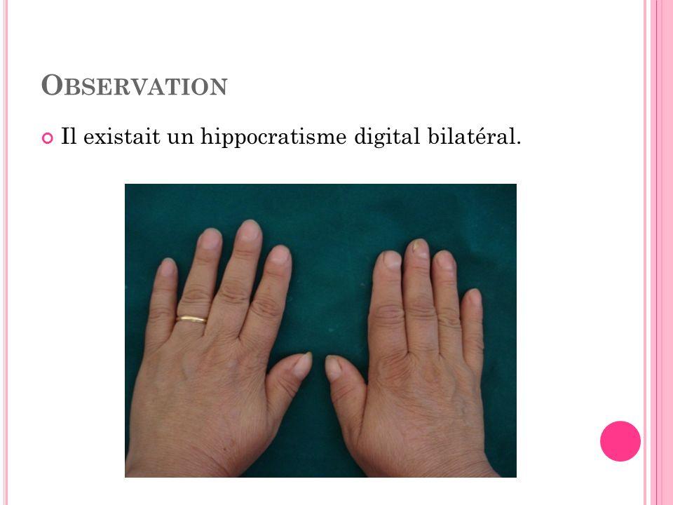 Observation Il existait un hippocratisme digital bilatéral.