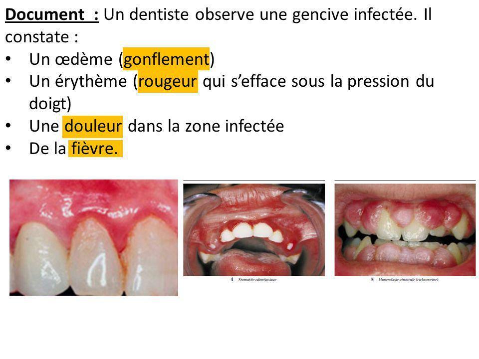 Document : Un dentiste observe une gencive infectée. Il constate :