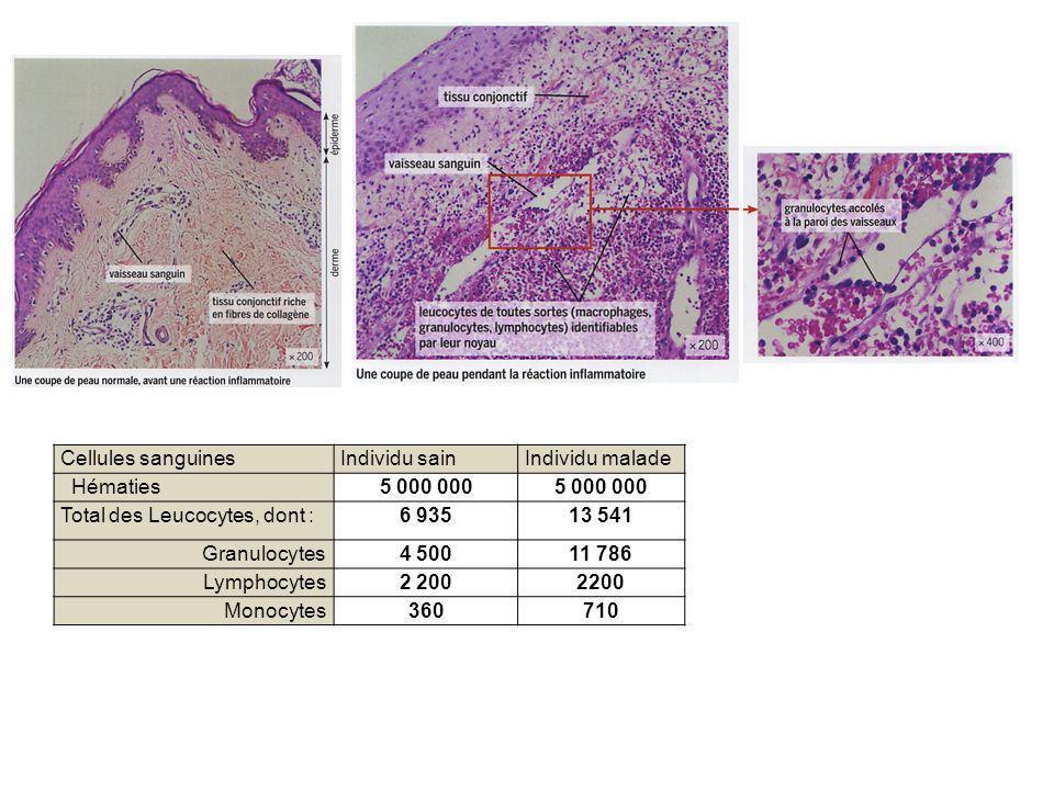 Total des Leucocytes, dont : 6 935 13 541 Granulocytes 4 500 11 786