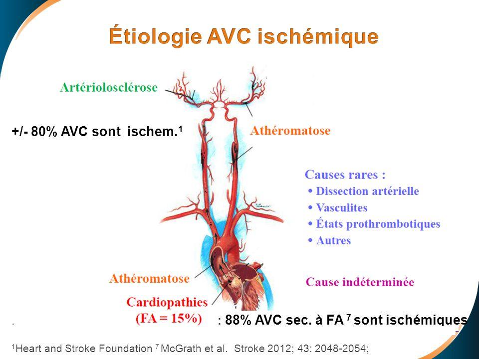 Étiologie AVC ischémique