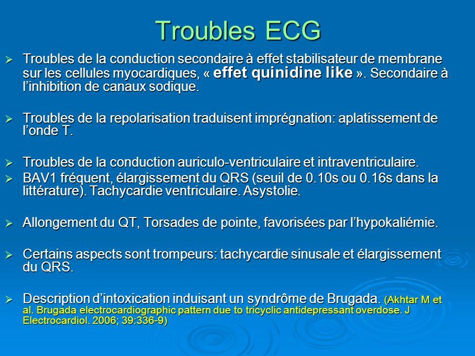 Troubles ECG