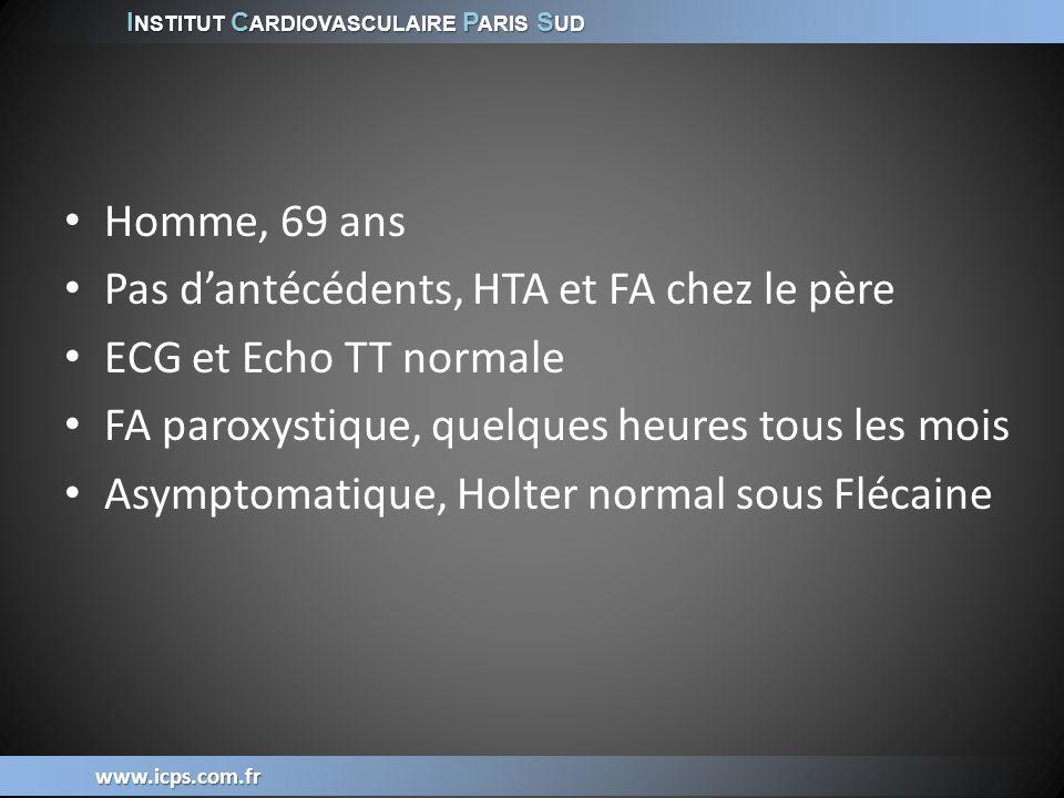 Pas d'antécédents, HTA et FA chez le père ECG et Echo TT normale