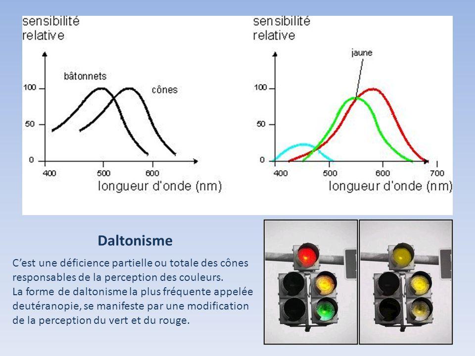 Daltonisme C'est une déficience partielle ou totale des cônes responsables de la perception des couleurs.