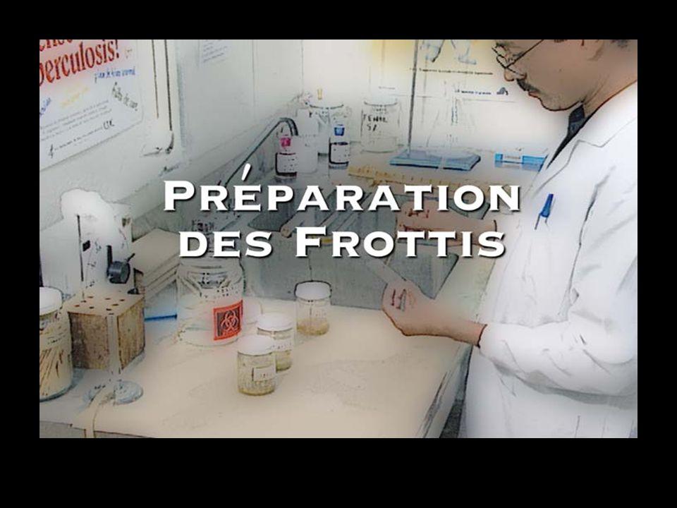 Préparation des frottis