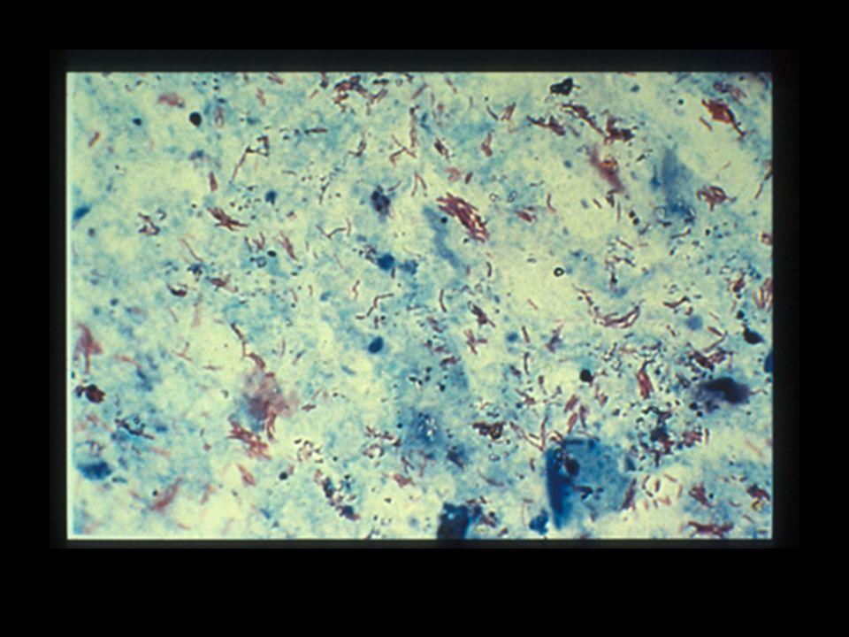 Les bacilles tuberculeux apparaissent comme de fins bâtonnets rouges légèrement incurvés, granuleux, isolés, par paires ou en amas, se détachant nettement sur le fond bleu de la préparation.