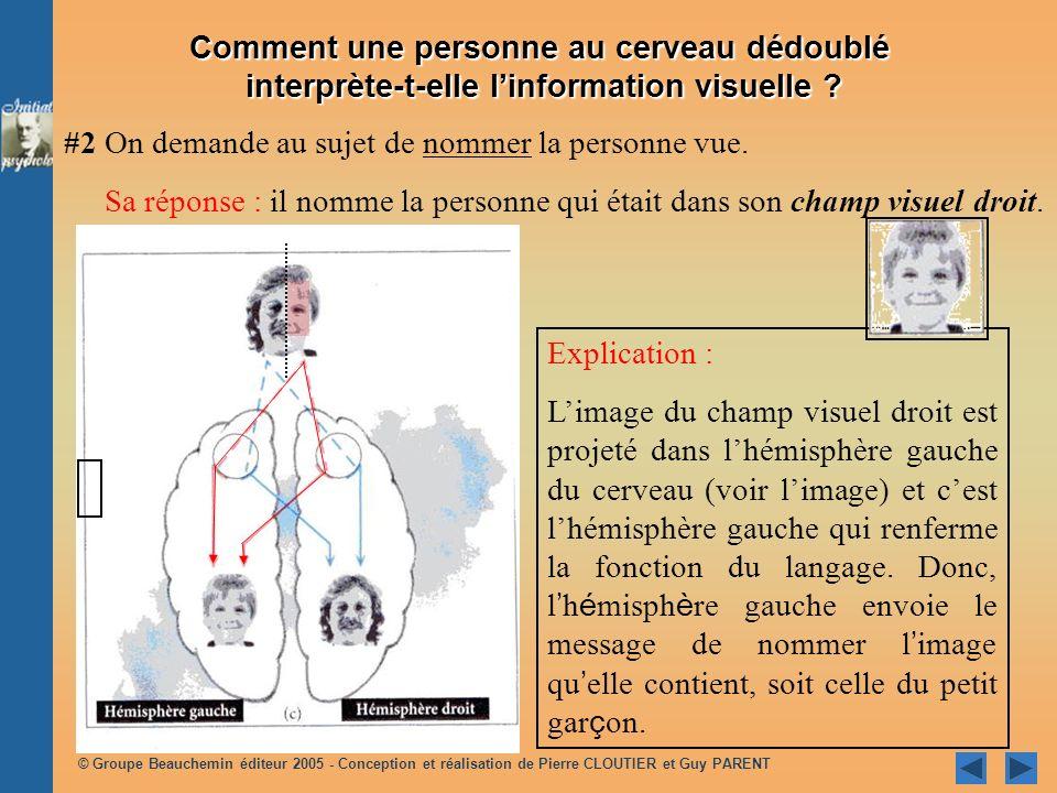 Comment une personne au cerveau dédoublé interprète-t-elle l'information visuelle