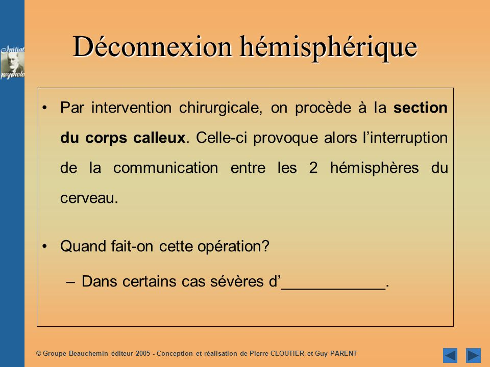 Déconnexion hémisphérique