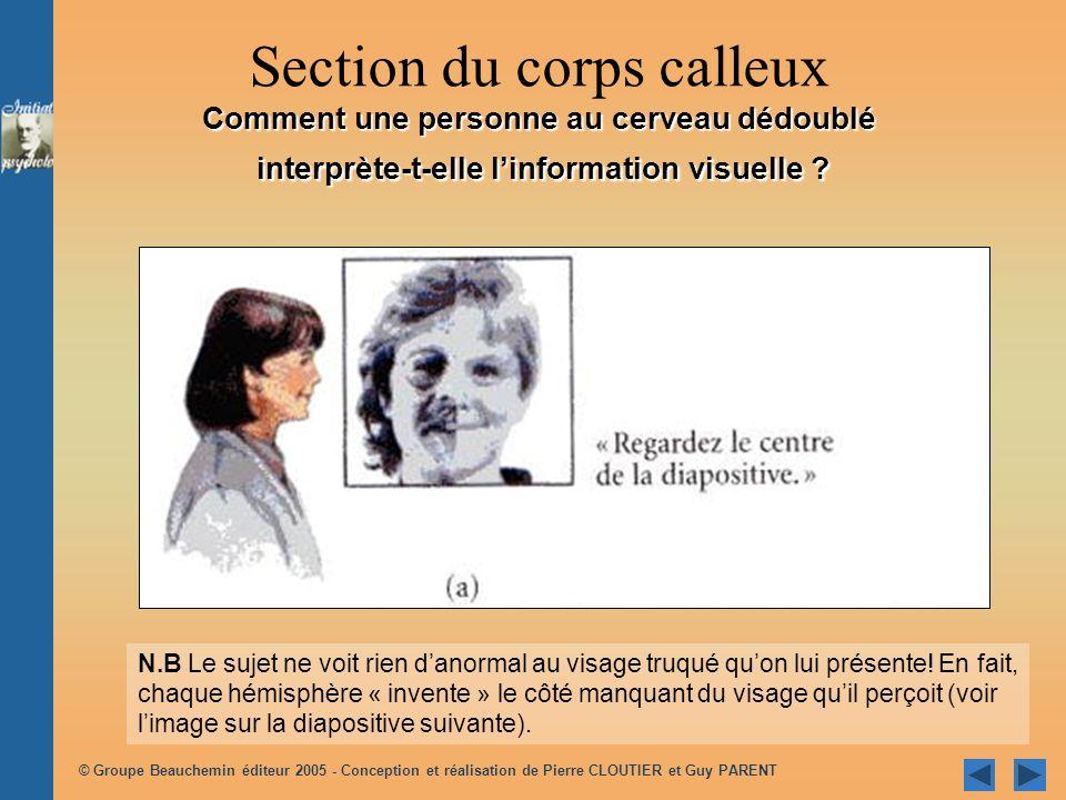 Section du corps calleux Comment une personne au cerveau dédoublé interprète-t-elle l'information visuelle