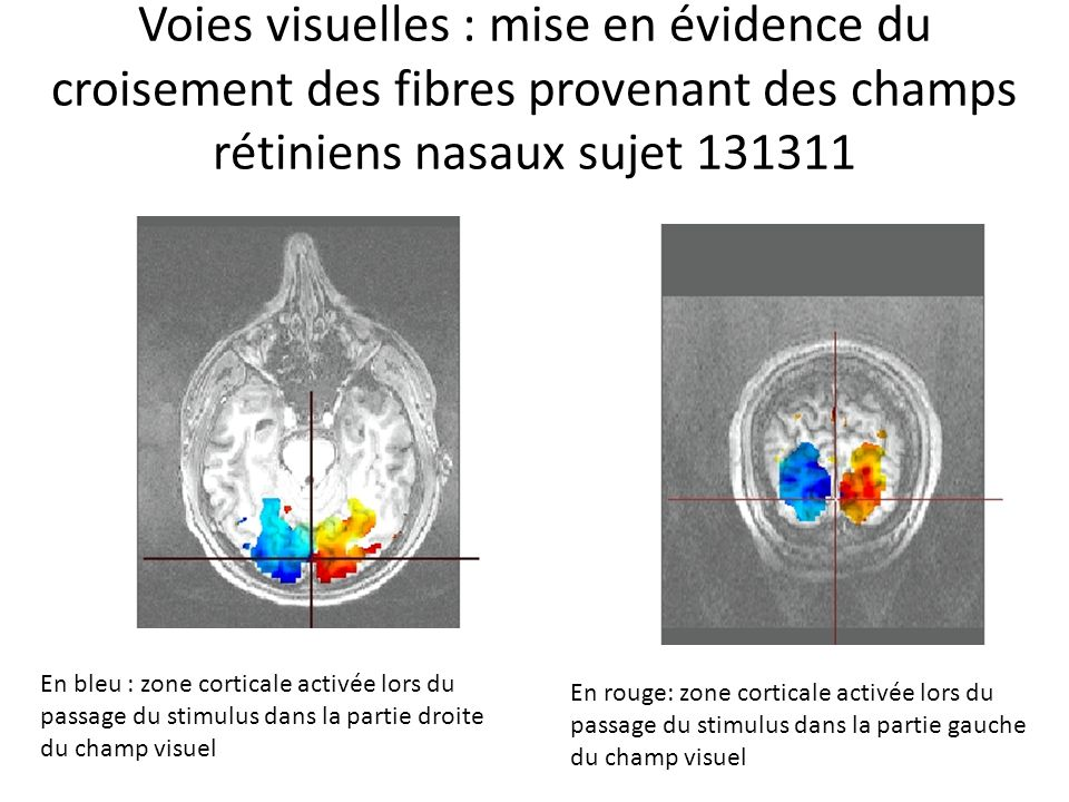 Voies visuelles : mise en évidence du croisement des fibres provenant des champs rétiniens nasaux sujet 131311
