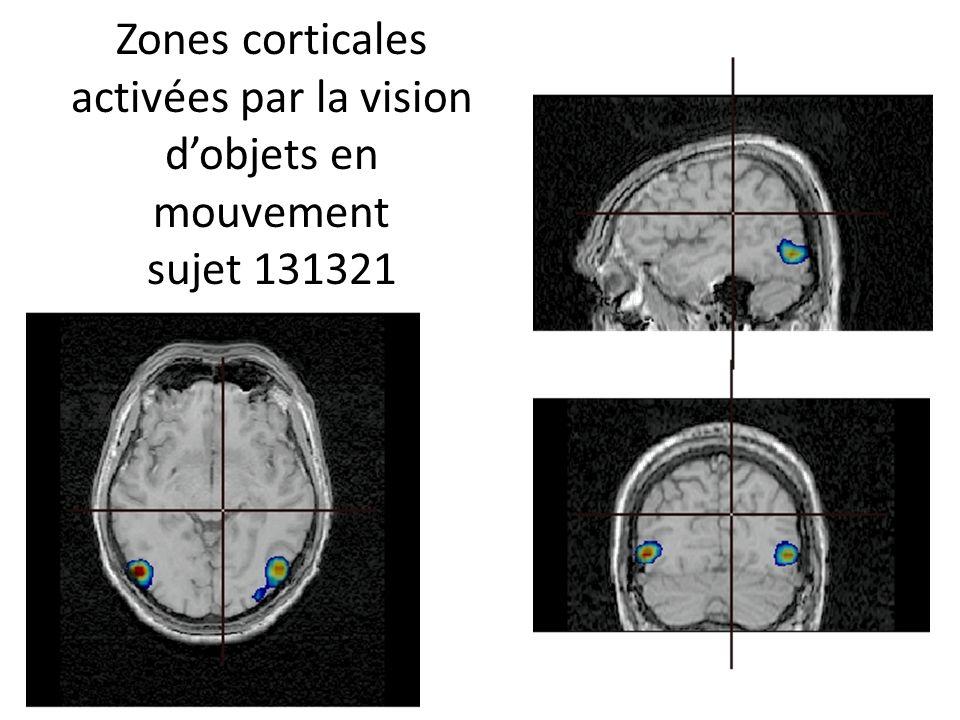 Zones corticales activées par la vision d'objets en mouvement sujet 131321