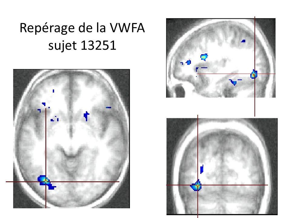 Repérage de la VWFA sujet 13251