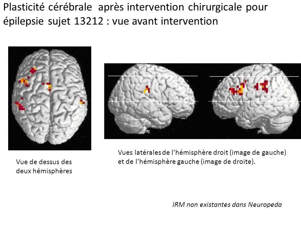 Plasticité cérébrale après intervention chirurgicale pour épilepsie sujet 13212 : vue avant intervention