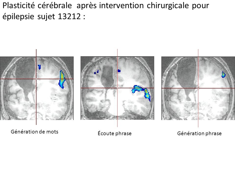 Plasticité cérébrale après intervention chirurgicale pour épilepsie sujet 13212 :