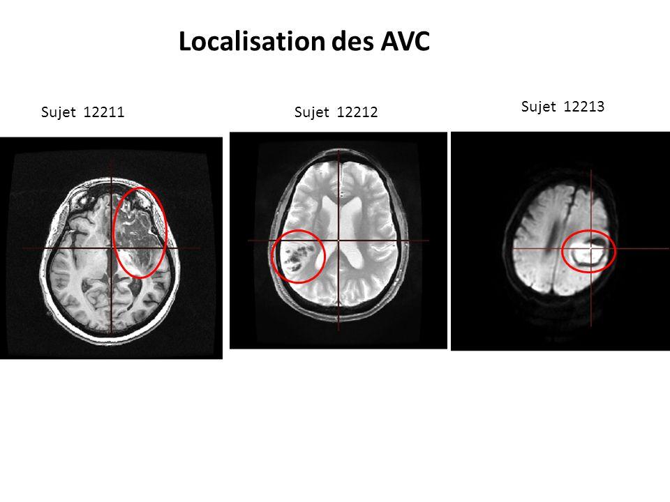 Localisation des AVC Sujet 12213 Sujet 12211 Sujet 12212