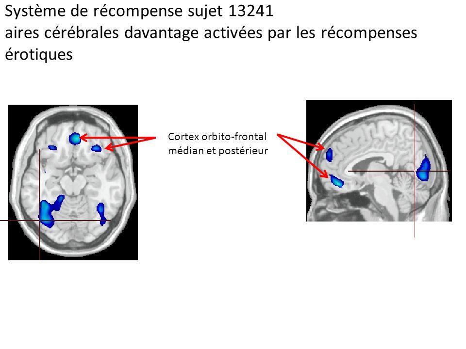 Système de récompense sujet 13241 aires cérébrales davantage activées par les récompenses érotiques