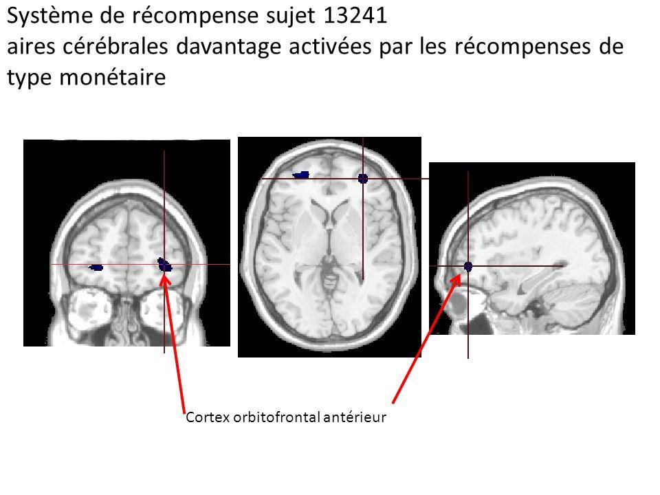 Système de récompense sujet 13241 aires cérébrales davantage activées par les récompenses de type monétaire