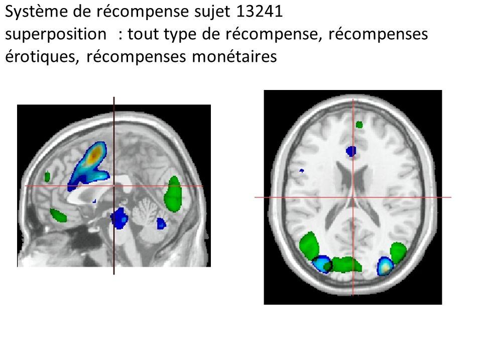 Système de récompense sujet 13241 superposition : tout type de récompense, récompenses érotiques, récompenses monétaires