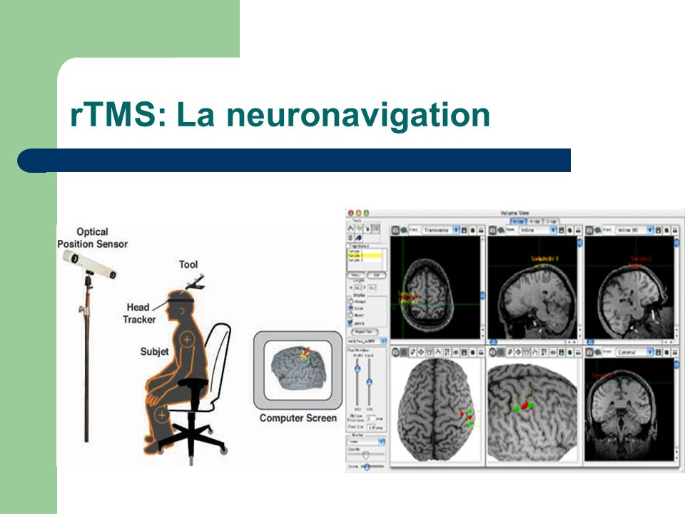 rTMS: La neuronavigation