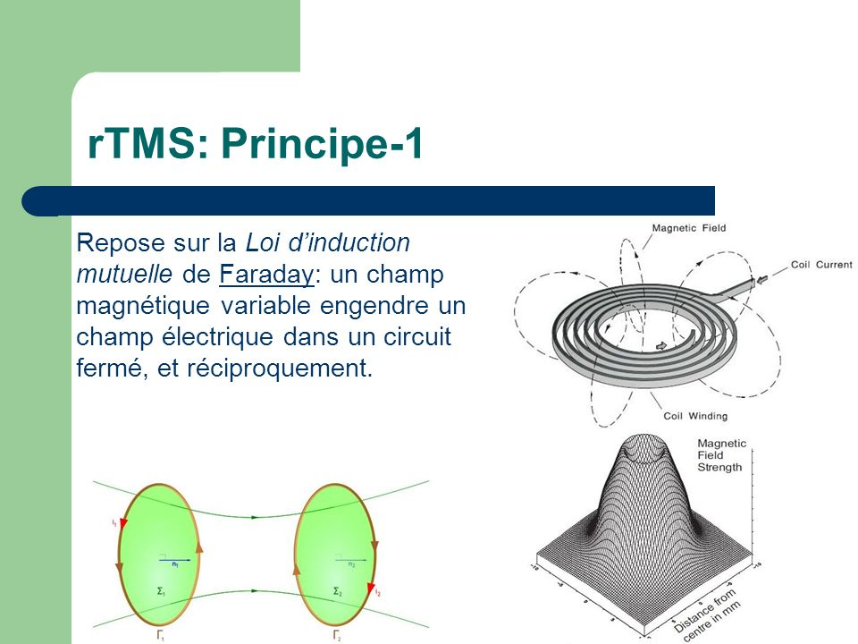 rTMS: Principe-1