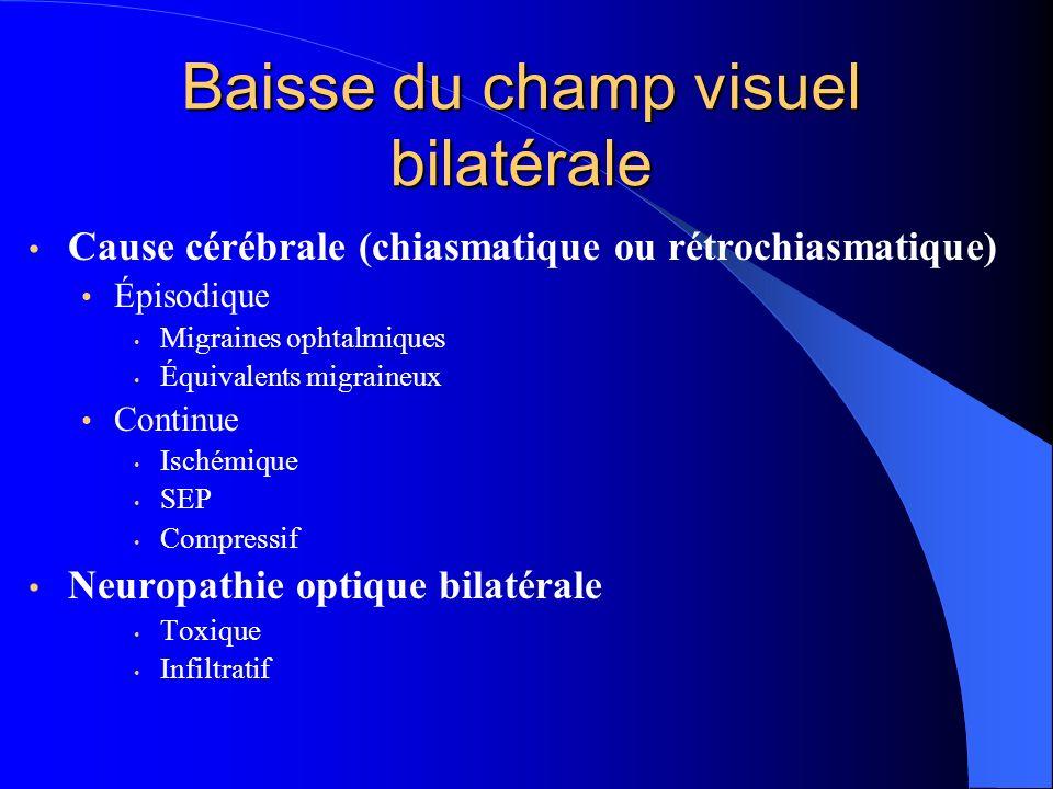 Baisse du champ visuel bilatérale