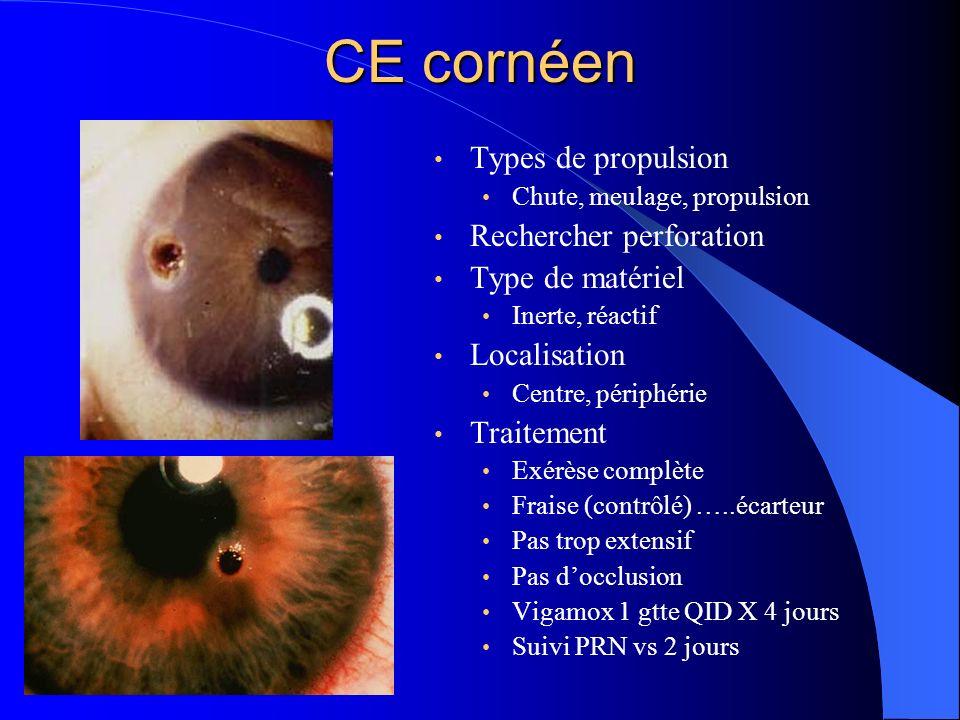 CE cornéen Types de propulsion Rechercher perforation Type de matériel