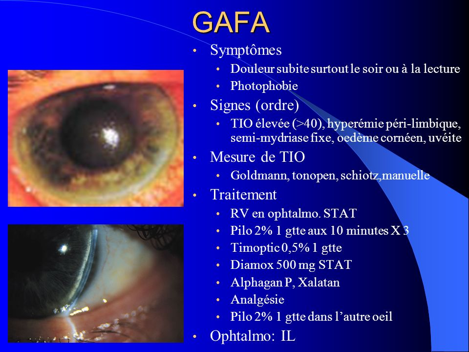 GAFA Symptômes Signes (ordre) Mesure de TIO Traitement Ophtalmo: IL