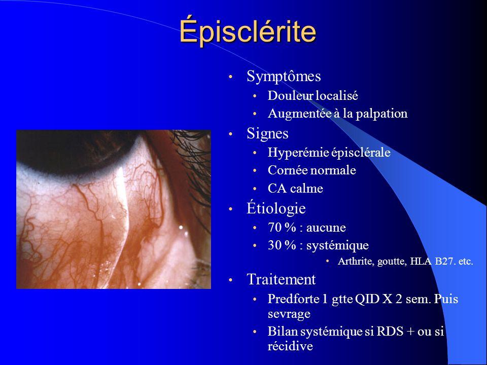 Épisclérite Symptômes Signes Étiologie Traitement Douleur localisé
