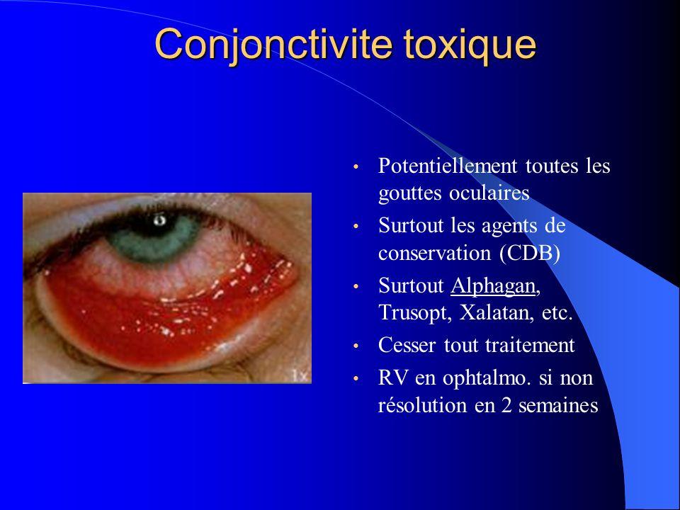 Conjonctivite toxique