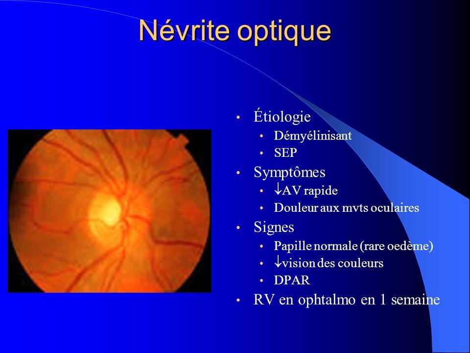 Névrite optique Étiologie Symptômes Signes RV en ophtalmo en 1 semaine