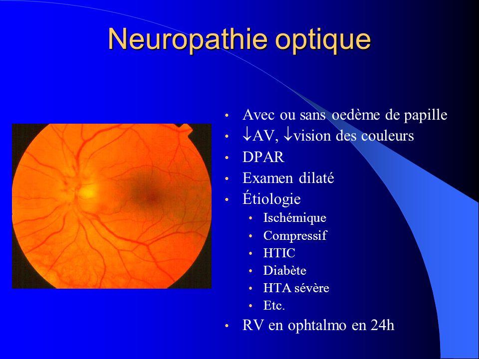 Neuropathie optique Avec ou sans oedème de papille
