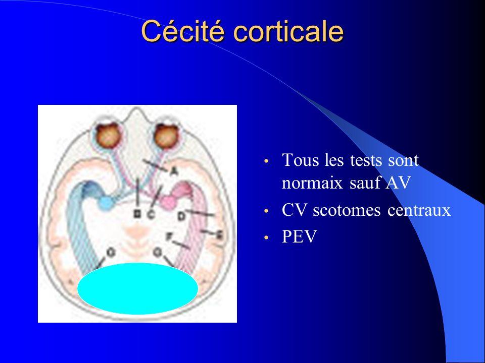 Cécité corticale Tous les tests sont normaix sauf AV