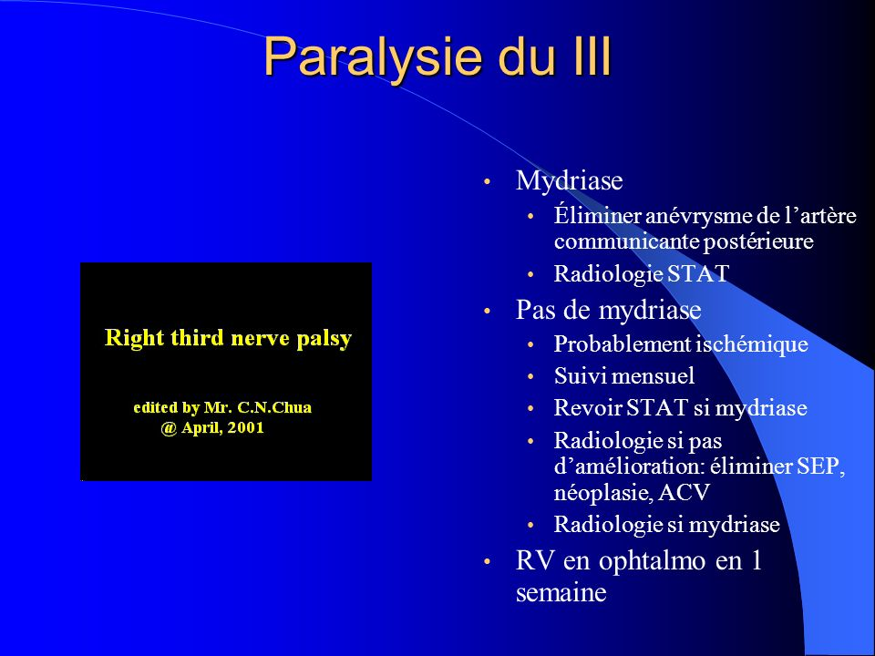 Paralysie du III Mydriase Pas de mydriase RV en ophtalmo en 1 semaine
